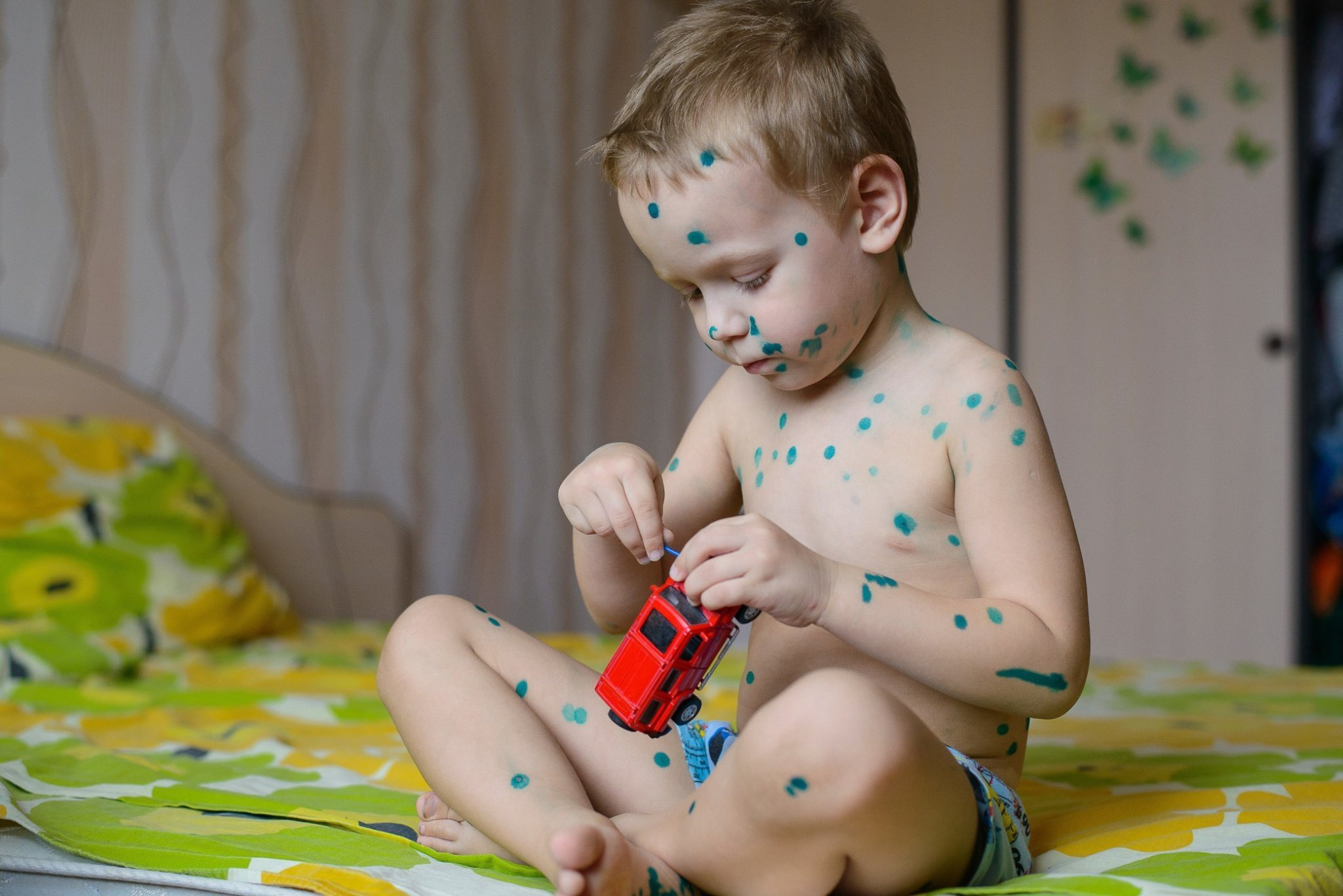 a-small-a-boy-with-chicken-pox-lubricates-rashes-pan-green-the-solution_t20_ko1kR3.jpg